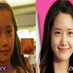 Yoona plastic surgery Before and After 150x150