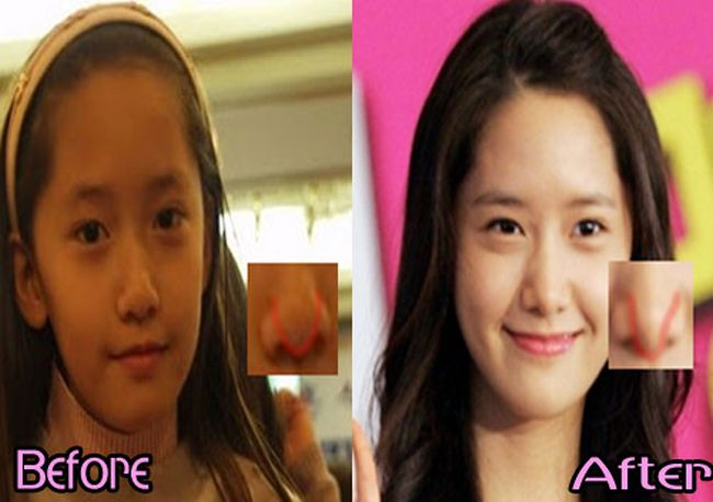 Yoona plastic surgery Before and After