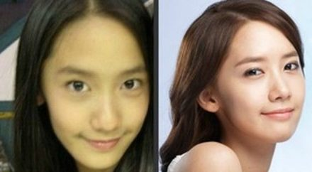 Yoona After Nose Job Plastic Surgery