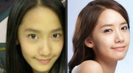 Yoona After Nose Job Plastic Surgery
