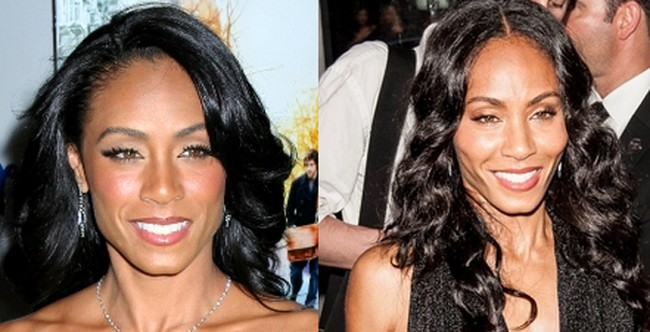 has Jada Pinkett had a facelift plastic surgery