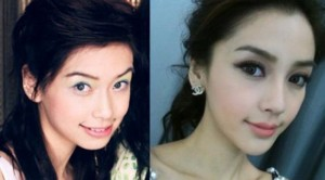 Angelababy before and after jaw plastic surgery 300x166