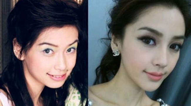 Angelababy before and after jaw plastic surgery
