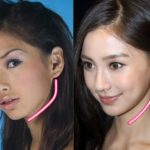 Angelababy before and after jaw surgery 150x150