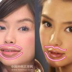 Angelababy before and after lip implants