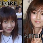 Angelababy before and after plastic surgery