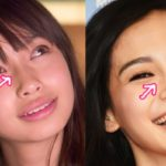 Angelababy nose job plastic surgery before and after 150x150