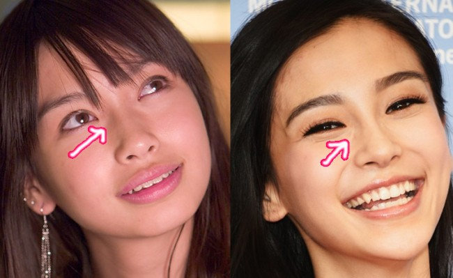 Angelababy nose job plastic surgery before and after