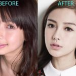 Angelababy plastic surgery before and after 150x150