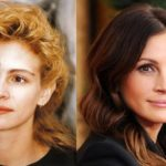 Julia Roberts Plastic Surgery Before and After 150x150