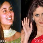 Kareena Kapoor Plastic Surgery Before and After 150x150