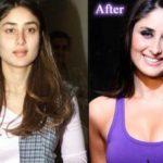 Kareena Kapoor Plastic Surgery 150x150