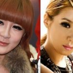 Park Bom before and after plastic surgery 150x150