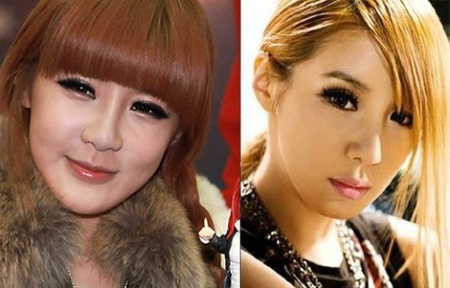 Park Bom before and after plastic surgery 630x403