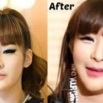 Park Bom plastic surgery disaster