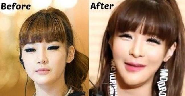 Park Bom plastic surgery disaster