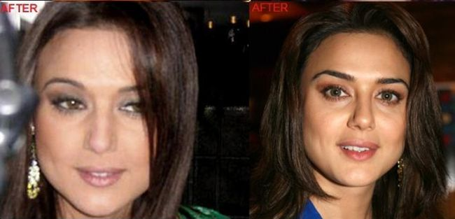 Preity Zinta before and after nose job plastic surgery