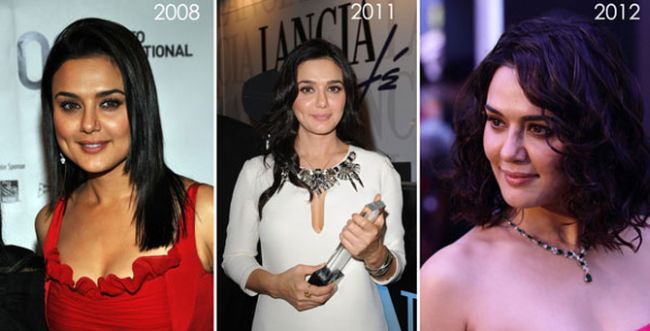 Preity Zinta before and after plastic surgery