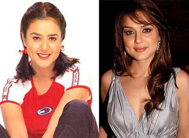 Preity Zinta before and after