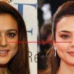 Preity Zinta nose job before and after 150x150