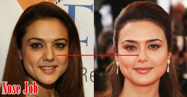 Preity Zinta nose job before and after