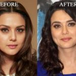 Preity Zinta plastic surgery before and after 150x150