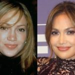jennifer lopez nose job plastic surgery before and after 150x150