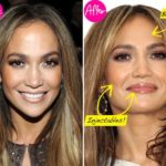 jennifer lopez plastic surgery rumors 150x150