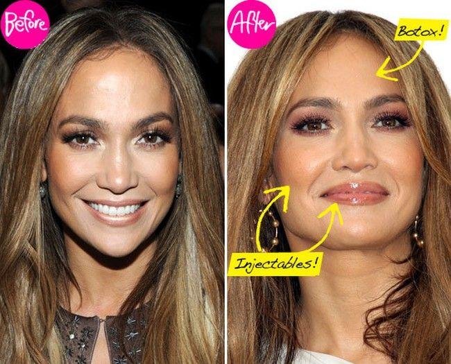 jennifer lopez plastic surgery rumors