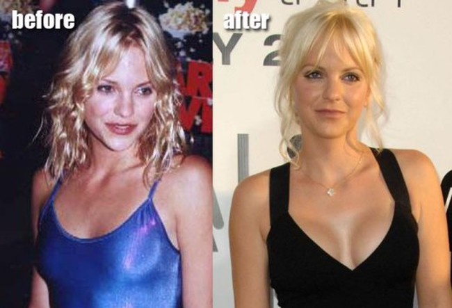 Anna Faris before and after boob job