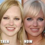 Anna Faris before and after nose job surgery 150x150