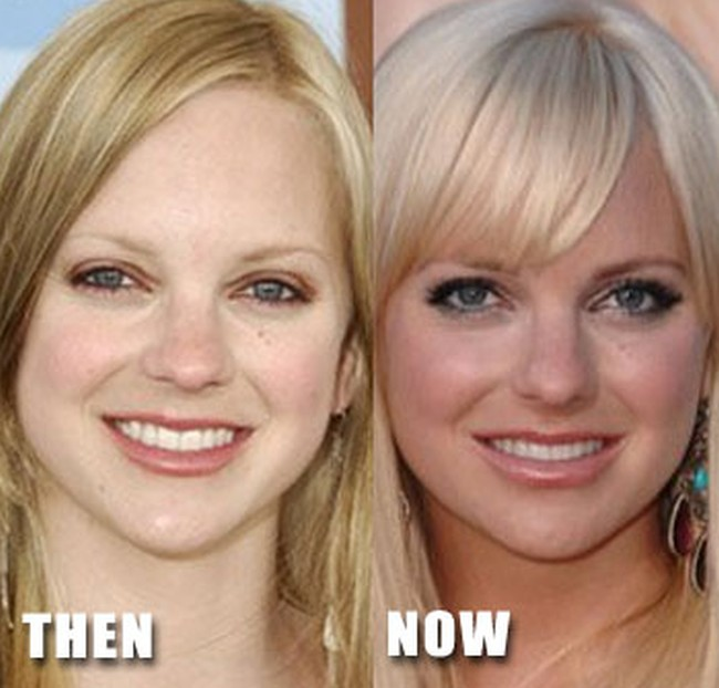 Anna Faris before and after nose job surgery