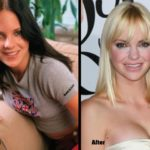 Anna Faris before and after plastic surgery 150x150