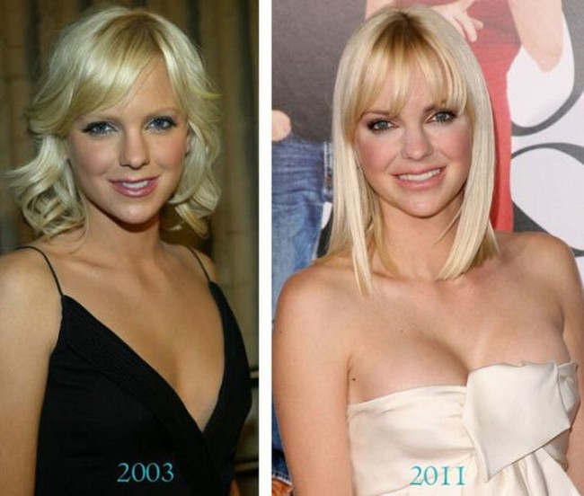 Anna Faris breast implants 2003 - 2011 photos