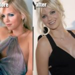 Anna Faris plastic surgery before and after 150x150