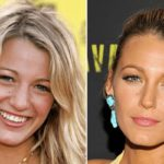 Blake Lively Nose Job Plastic Surgery before and after