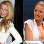 Blake Lively before and after boob job surgery 150x150