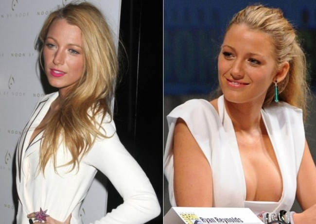 Blake Lively before and after boob job surgery