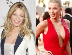 Blake Lively before and after breast implants 300x230