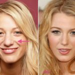 Blake Lively before and after nose job 2 150x150
