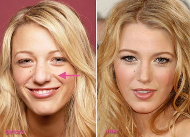 Blake Lively before and after nose job 2