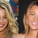 Blake Lively nose job before and after 150x150