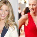 Blake Lively before and after breast augmentation 150x150