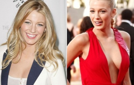 Blake Lively before and after breast augmentation