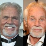 Kenny Rogers before after 150x150