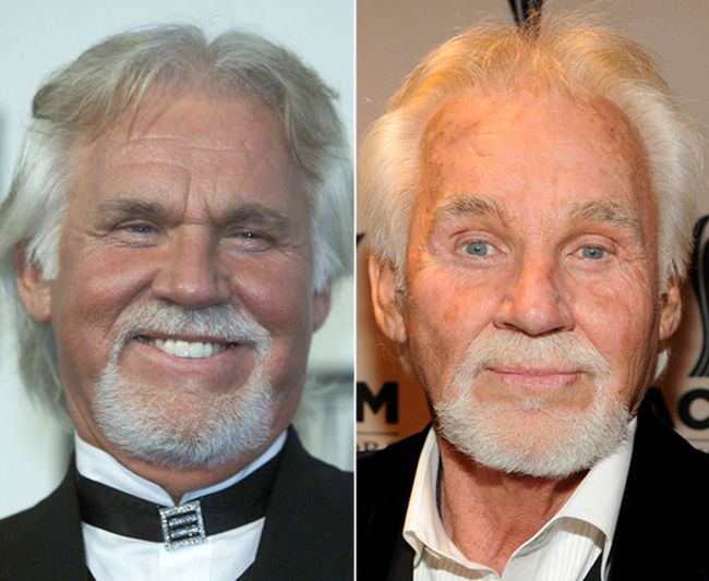 Kenny Rogers Before After