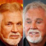 Kenny Rogers before and after plastic surgery 150x150