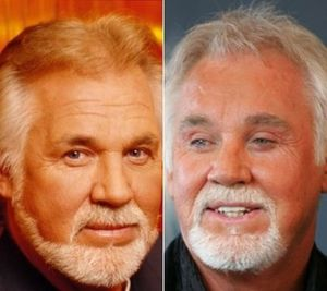 Kenny Rogers before and after plastic surgery 300x267