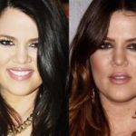 Khloe Kardashian before and after 150x150