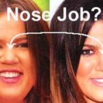 Khloe Kardashian nose job before and after 150x150